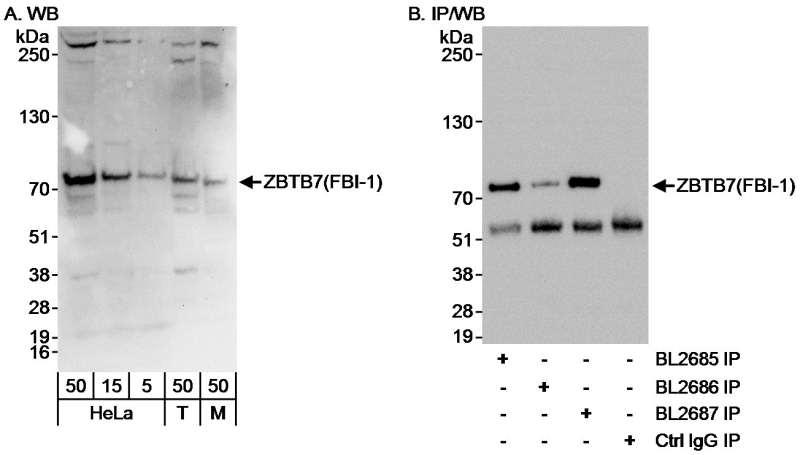 抗ZBTB7/FBI-1抗体   Anti-ZBTB7...