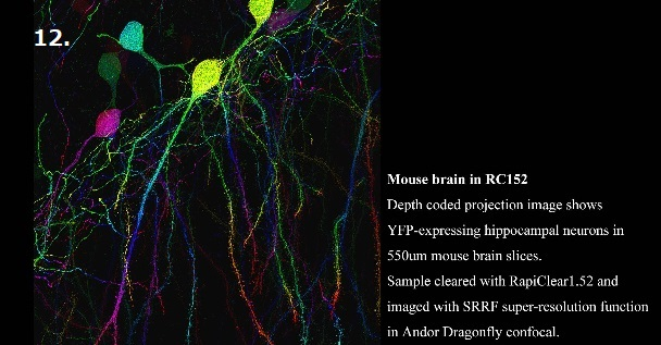 Mouse brain in RC152