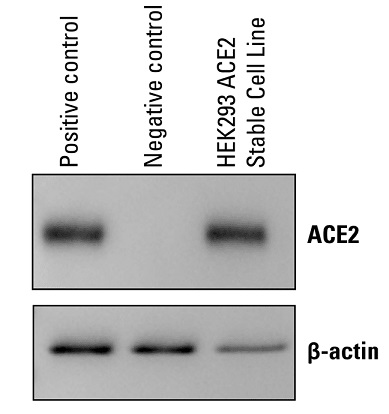 ACE2 Expression