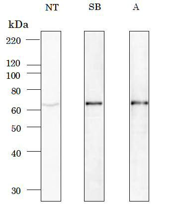 Signal Booster : Signal Enhancer for Western Blot and ELISA